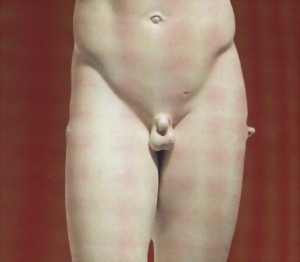 Обрезание или циркумцизия?